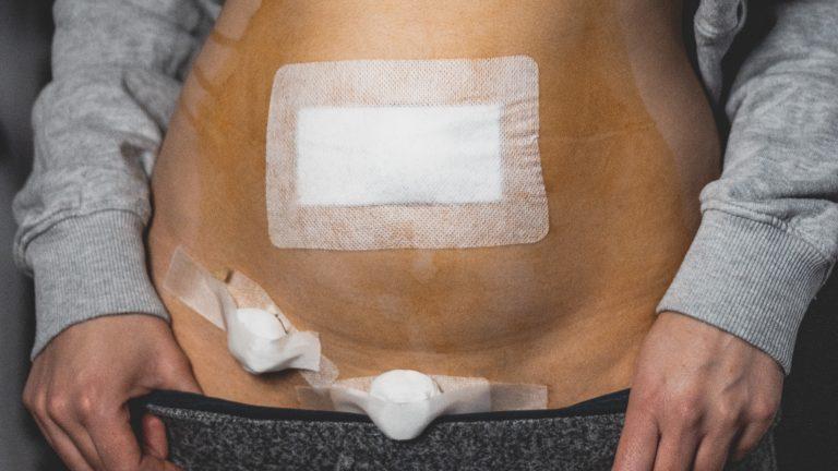 Meine Diagnose – ist es wirklich Endometriose?