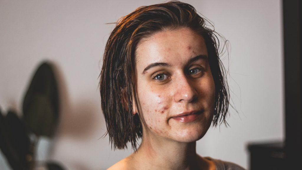 Mein Gesicht übersäht von Pickeln als eine Nebenwirkung der Visanne bei Endometriose.