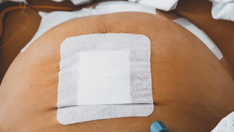 Gabriellas Endometriose Geschichte