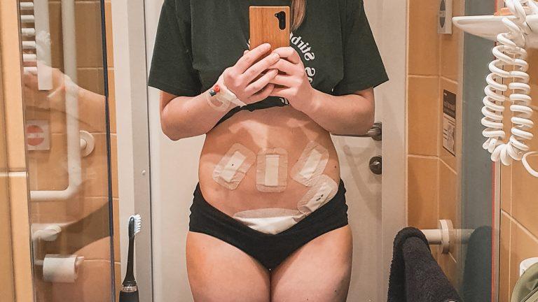Ronjas Endometriose Geschichte